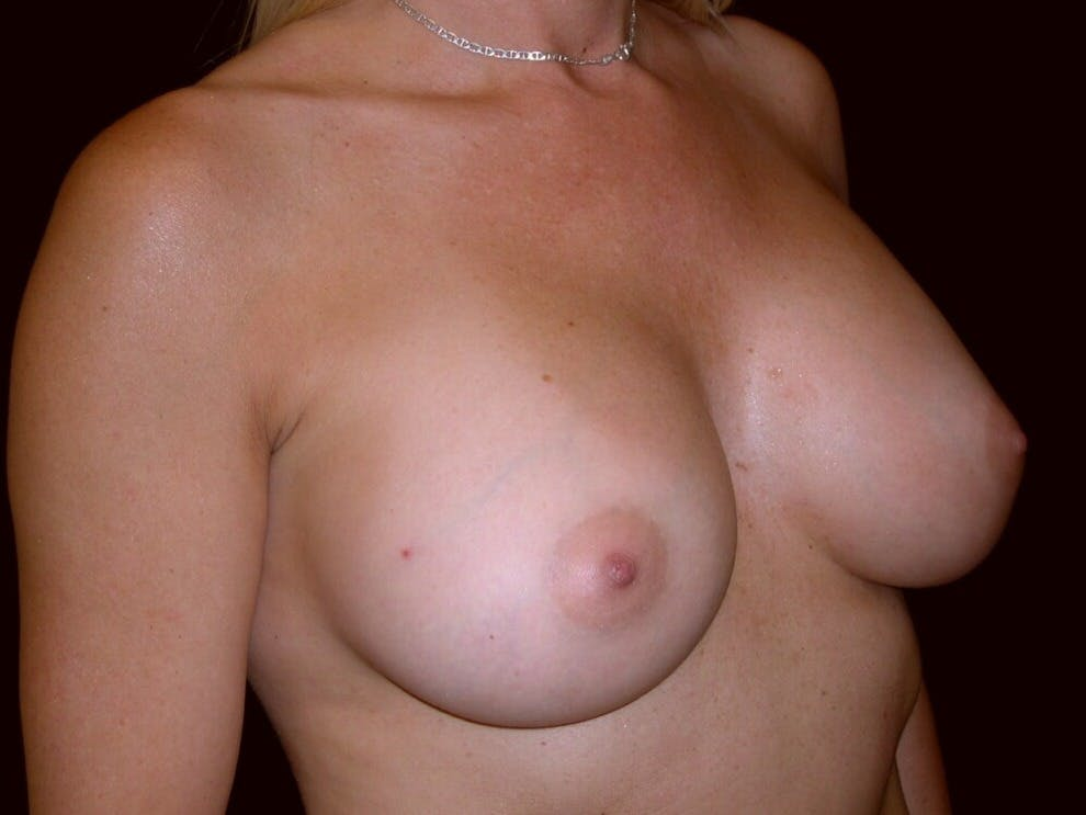Breast Augmentation Gallery - Patient 39245598 - Image 4