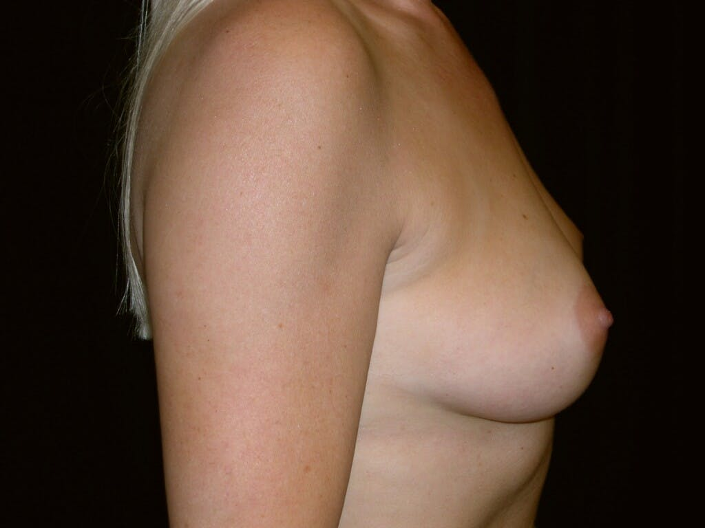 Breast Augmentation Gallery - Patient 39245598 - Image 5