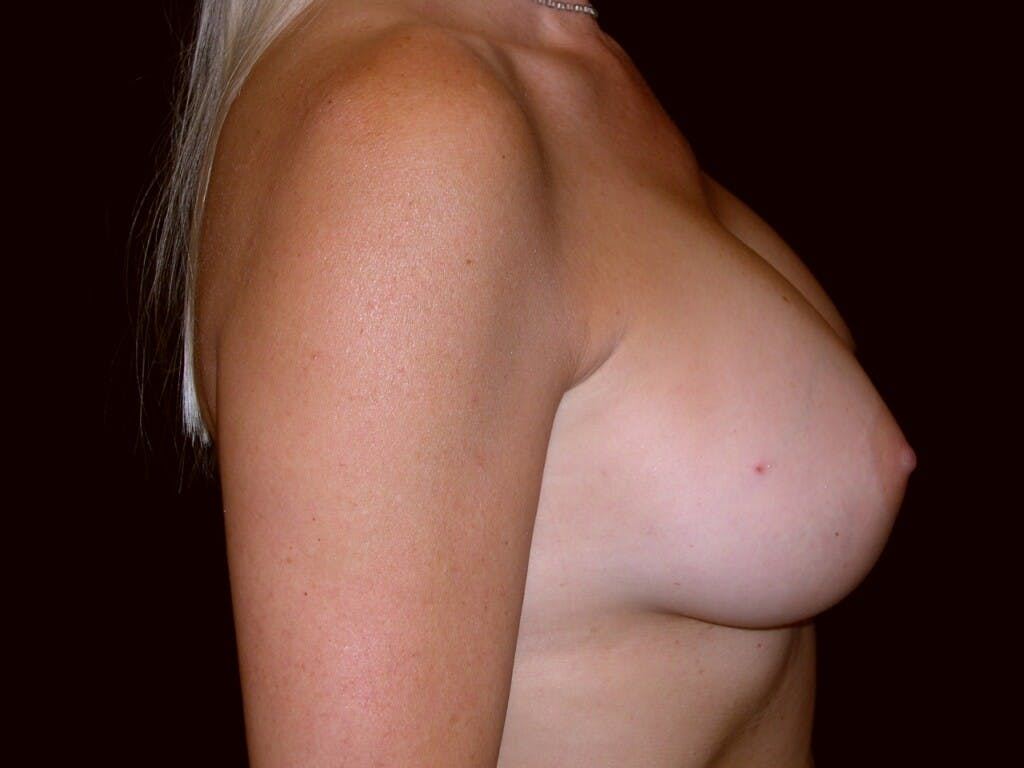 Breast Augmentation Gallery - Patient 39245598 - Image 6