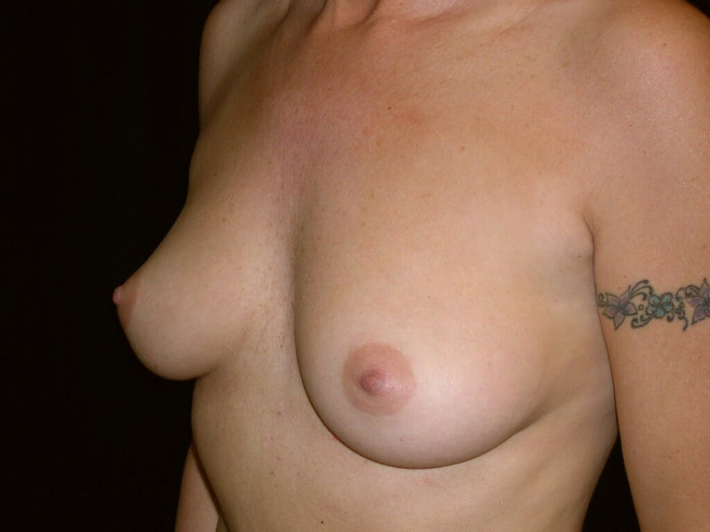 Breast Augmentation Gallery - Patient 39245598 - Image 7