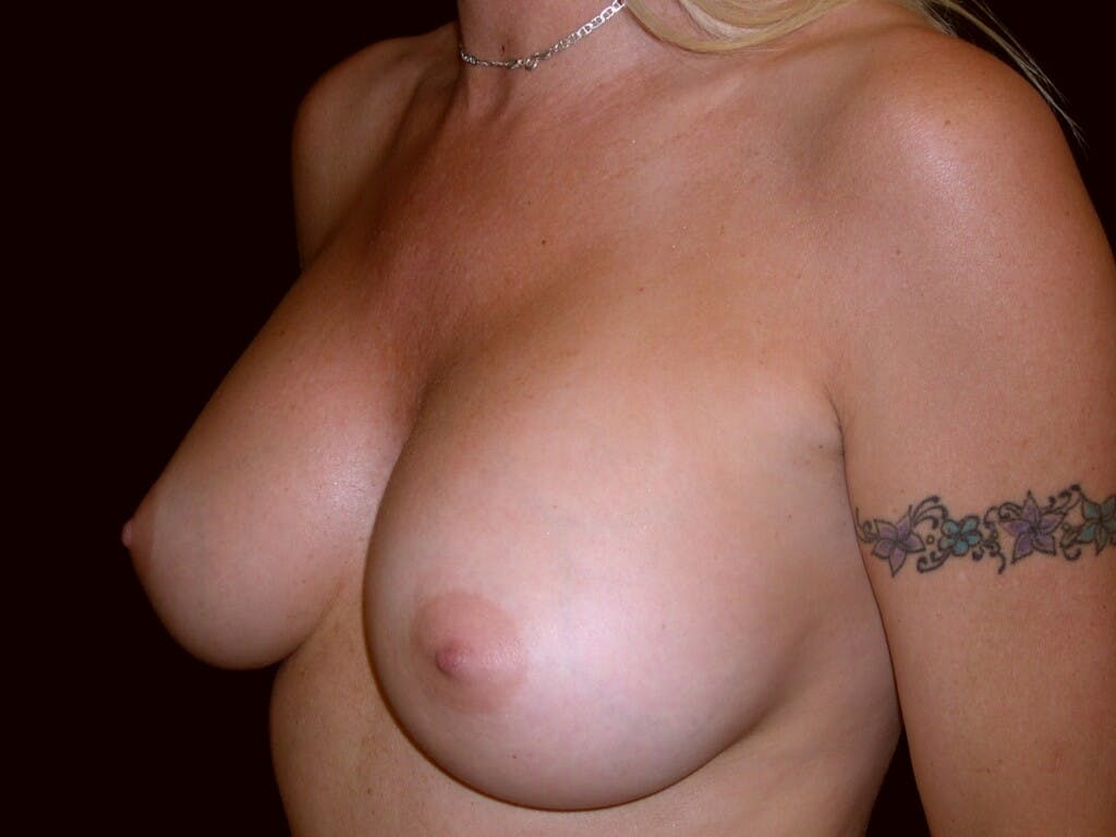 Breast Augmentation Gallery - Patient 39245598 - Image 8