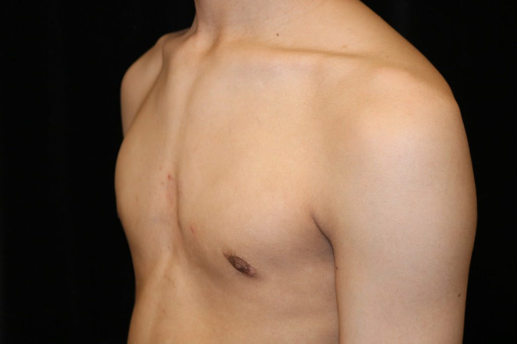 Gynecomastia Gallery - Patient 39245599 - Image 6