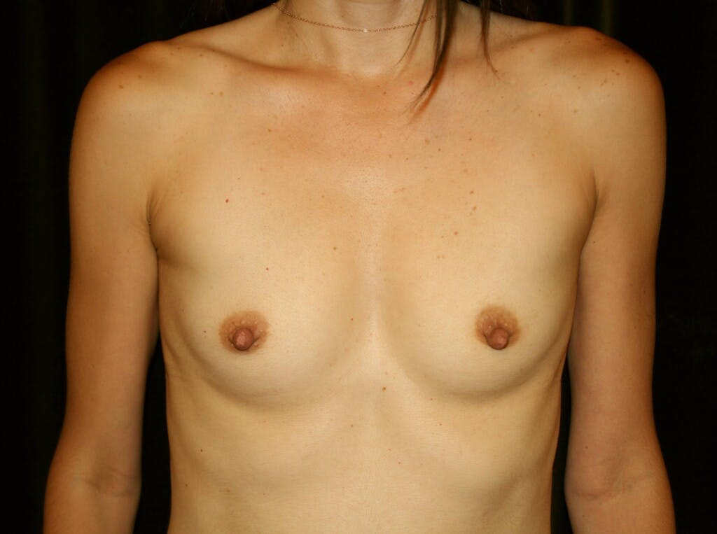 Breast Augmentation Gallery - Patient 39245607 - Image 1