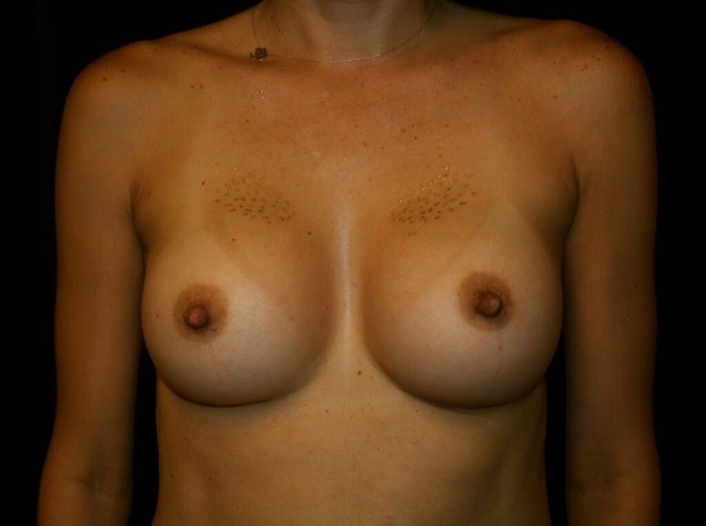 Breast Augmentation Gallery - Patient 39245607 - Image 2