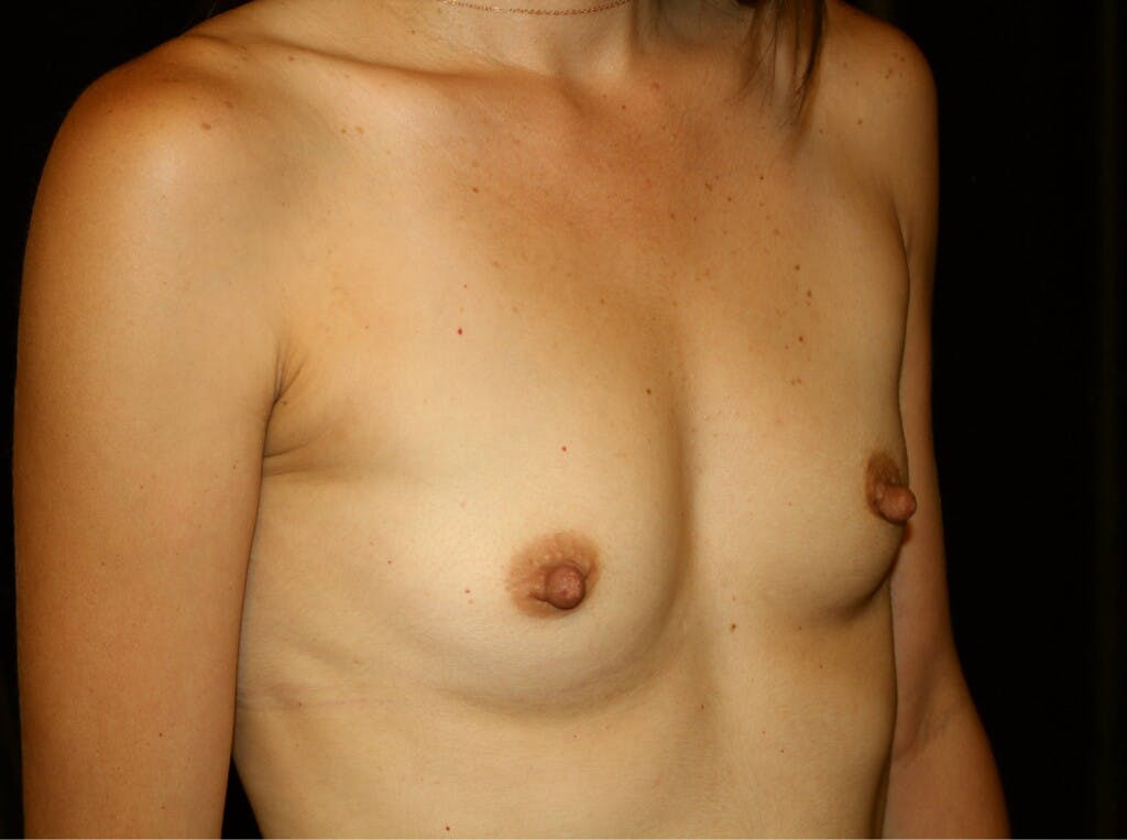 Breast Augmentation Gallery - Patient 39245607 - Image 3