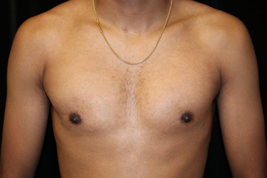 Gynecomastia Gallery - Patient 39245606 - Image 2