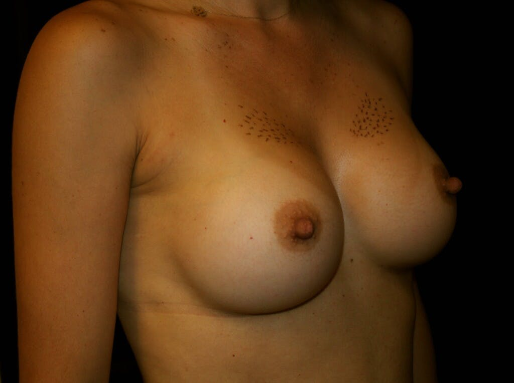 Breast Augmentation Gallery - Patient 39245607 - Image 4