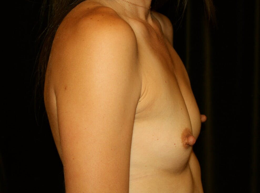 Breast Augmentation Gallery - Patient 39245607 - Image 5