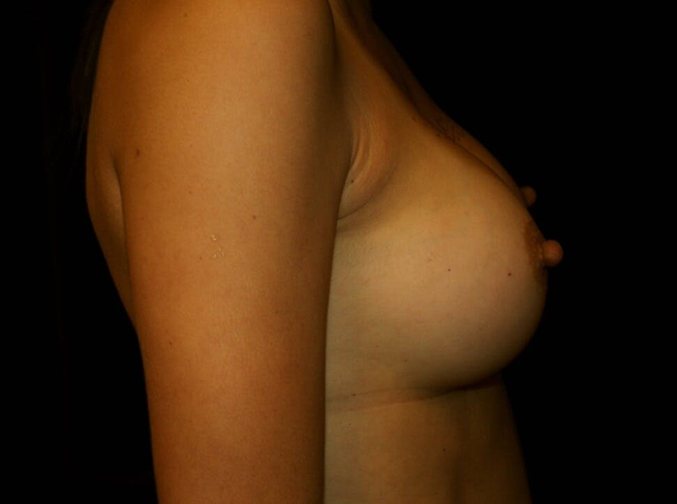Breast Augmentation Gallery - Patient 39245607 - Image 6