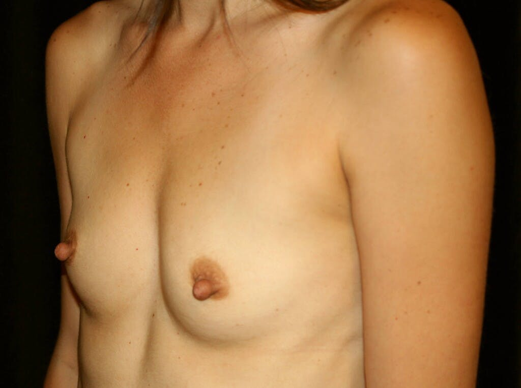 Breast Augmentation Gallery - Patient 39245607 - Image 7