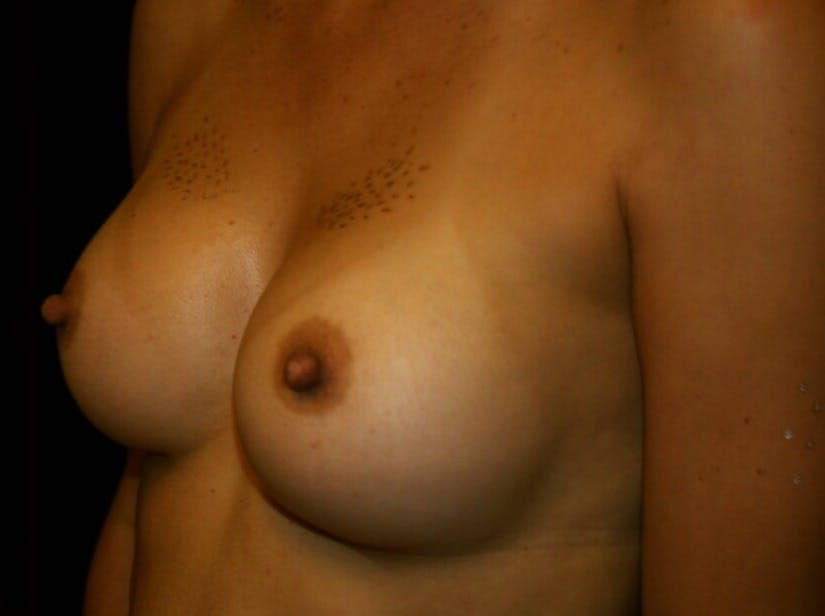 Breast Augmentation Gallery - Patient 39245607 - Image 8