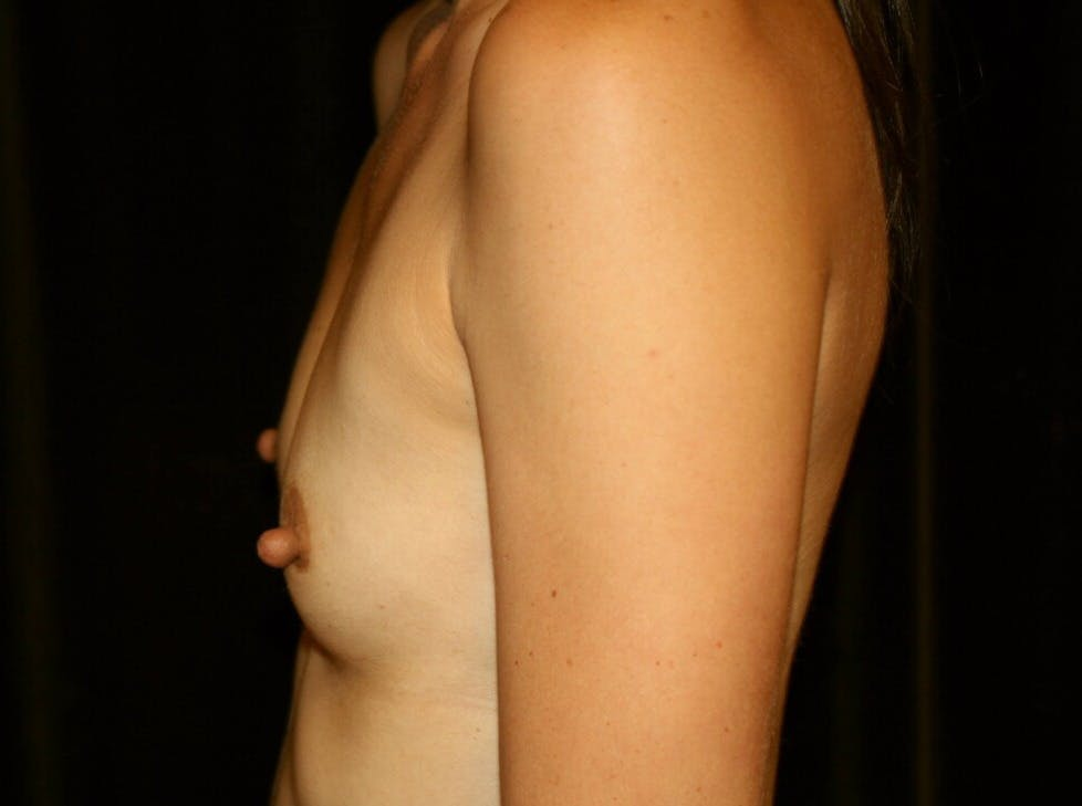Breast Augmentation Gallery - Patient 39245607 - Image 9