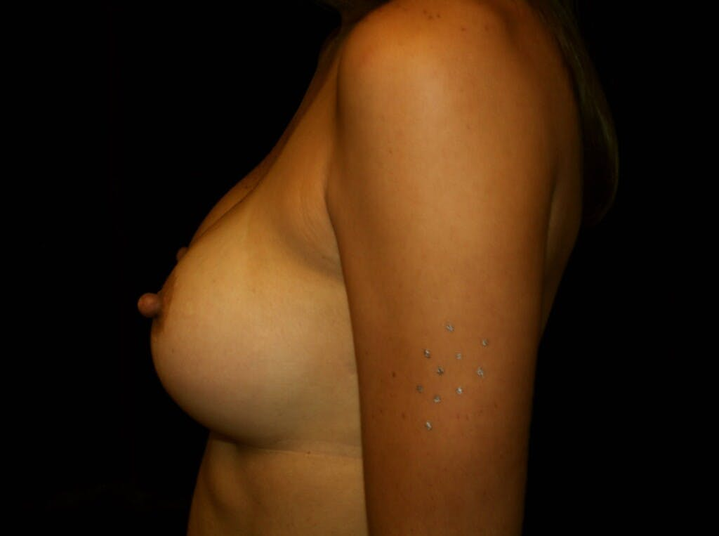 Breast Augmentation Gallery - Patient 39245607 - Image 10