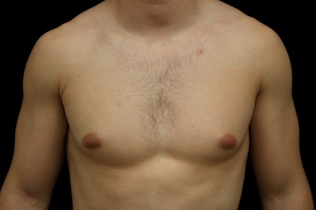 Gynecomastia Gallery - Patient 39245608 - Image 1