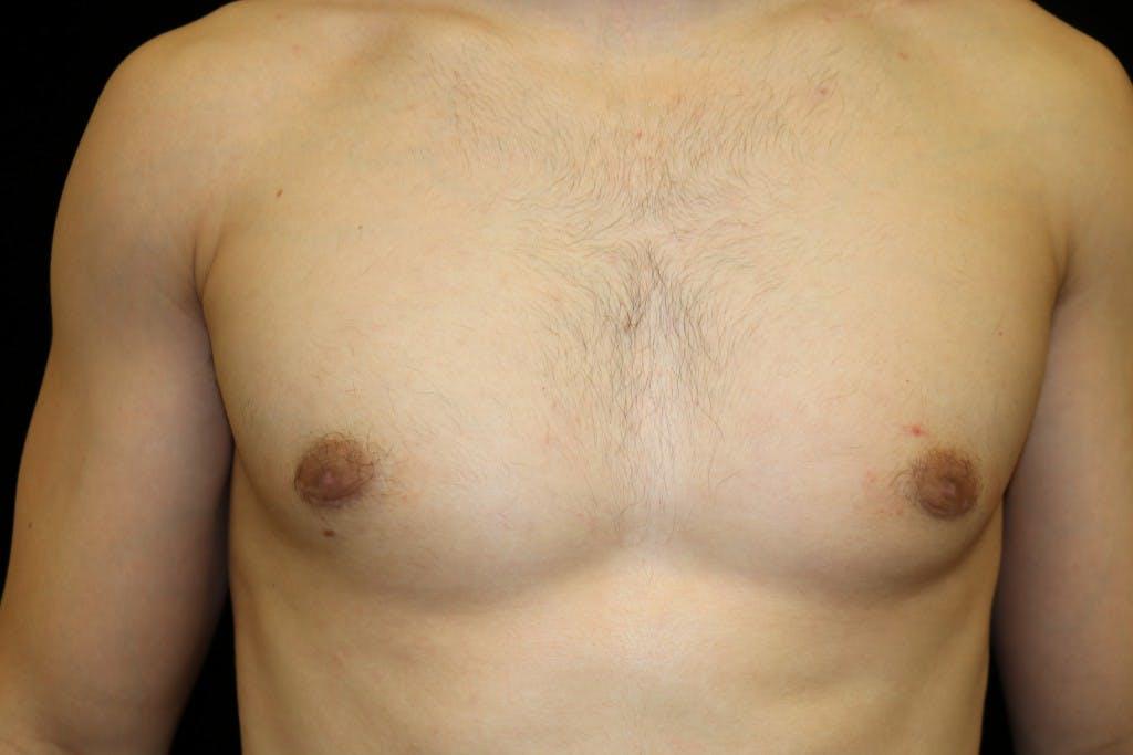 Gynecomastia Gallery - Patient 39245608 - Image 2