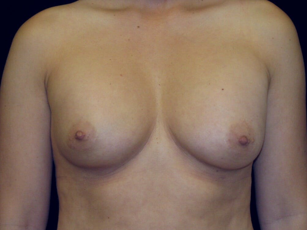 Breast Augmentation Gallery - Patient 39245609 - Image 1