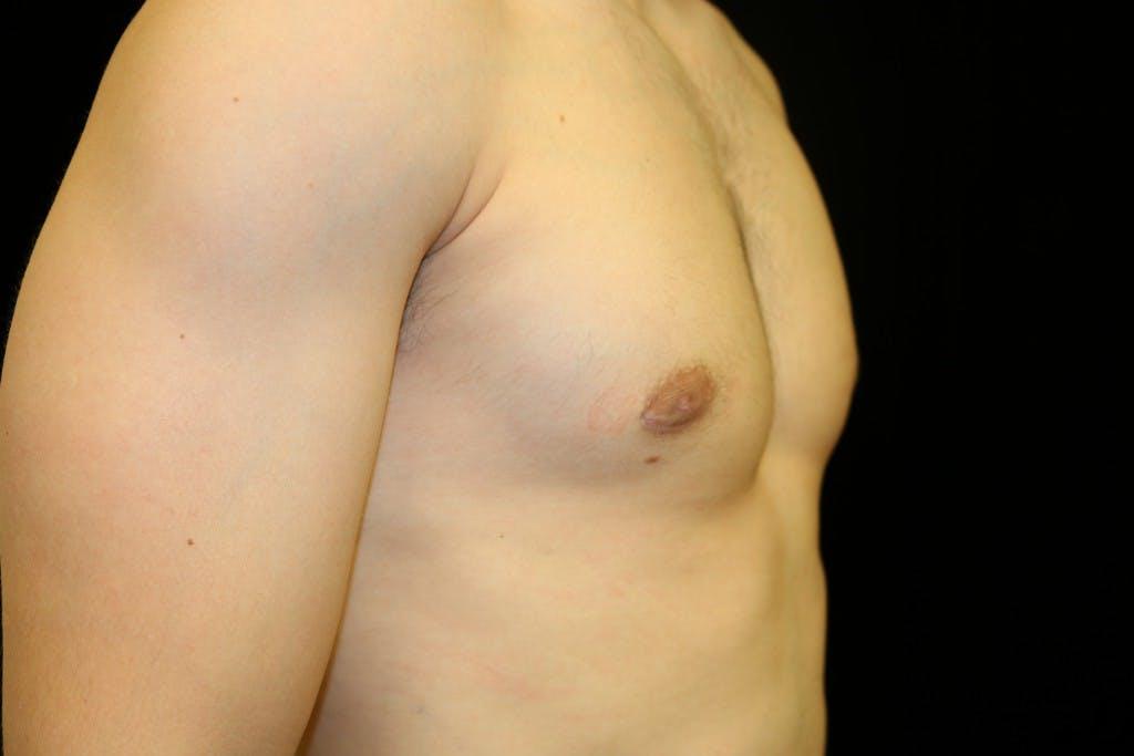 Gynecomastia Gallery - Patient 39245608 - Image 4