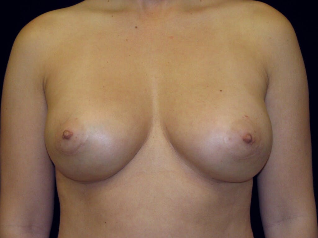 Breast Augmentation Gallery - Patient 39245609 - Image 2