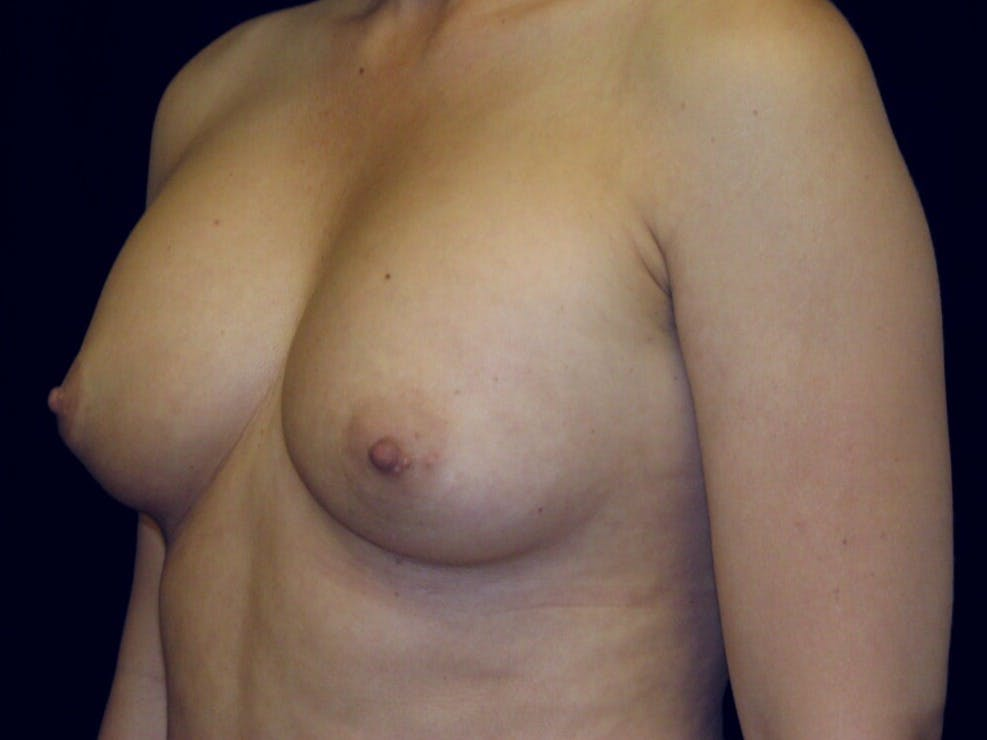 Breast Augmentation Gallery - Patient 39245609 - Image 3