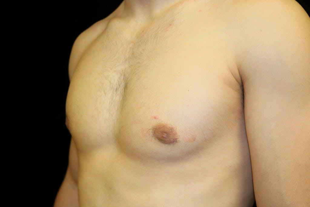 Gynecomastia Gallery - Patient 39245608 - Image 6