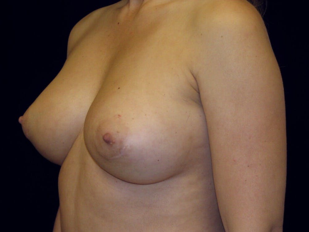 Breast Augmentation Gallery - Patient 39245609 - Image 4