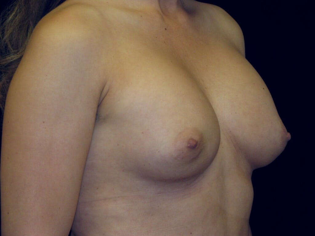Breast Augmentation Gallery - Patient 39245609 - Image 5