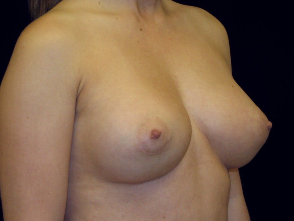 Breast Augmentation Gallery - Patient 39245609 - Image 6