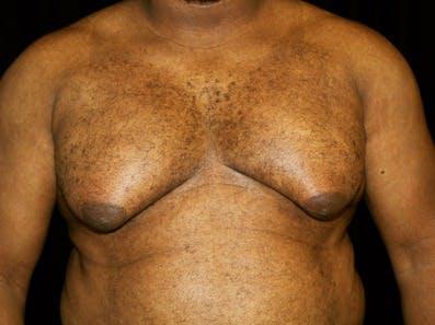 Gynecomastia Gallery - Patient 39245610 - Image 1