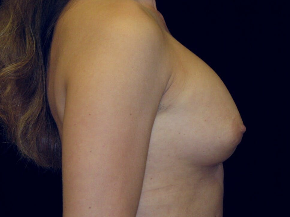 Breast Augmentation Gallery - Patient 39245609 - Image 7