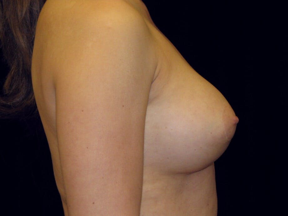 Breast Augmentation Gallery - Patient 39245609 - Image 8