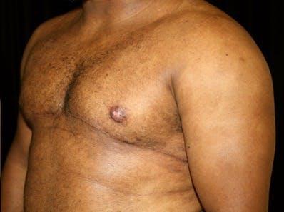 Gynecomastia Gallery - Patient 39245610 - Image 6