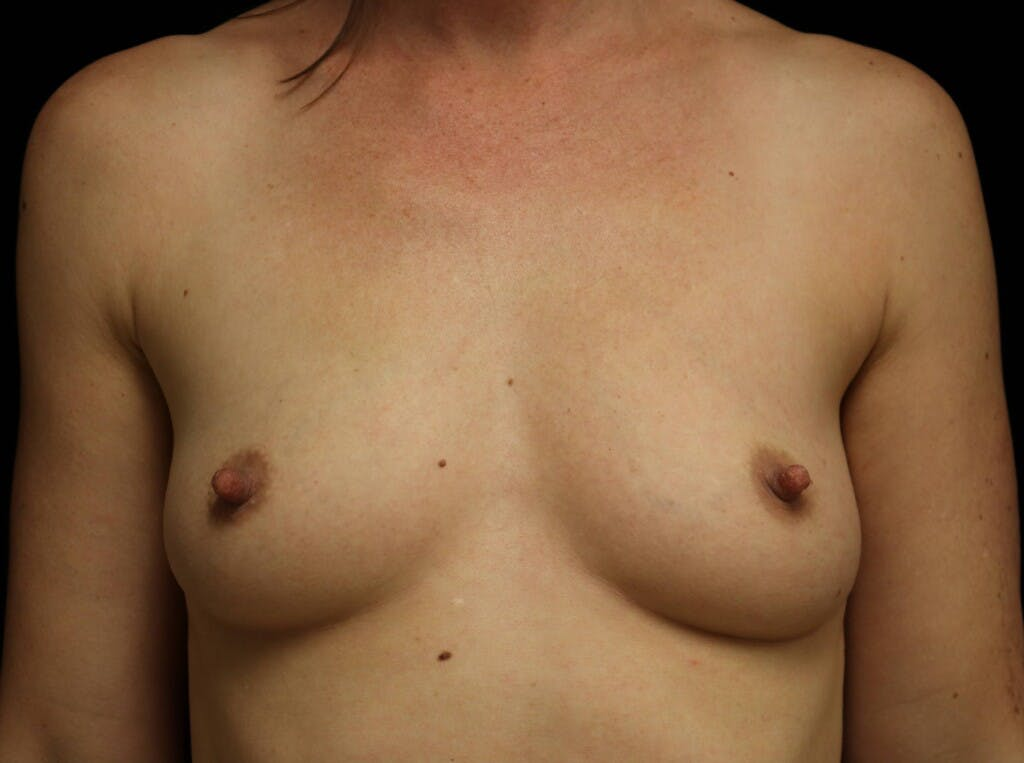 Breast Augmentation Gallery - Patient 39245612 - Image 1