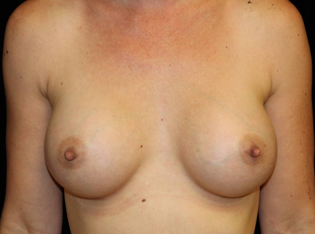 Breast Augmentation Gallery - Patient 39245612 - Image 2