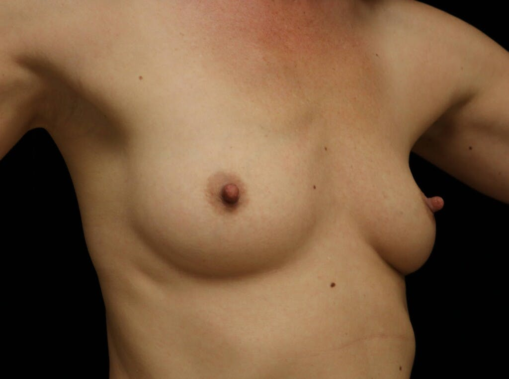 Breast Augmentation Gallery - Patient 39245612 - Image 3