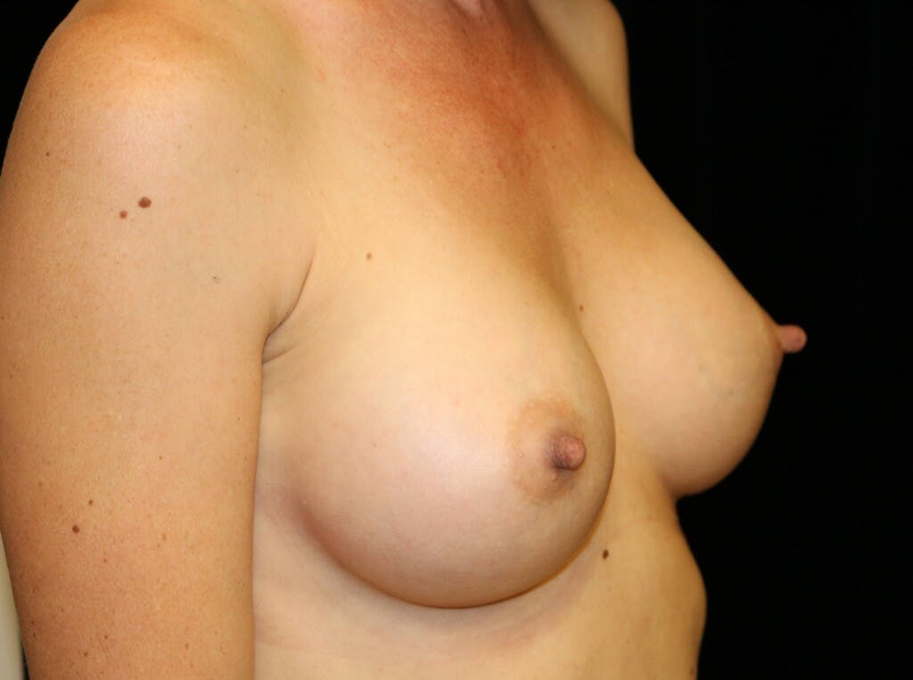 Breast Augmentation Gallery - Patient 39245612 - Image 4