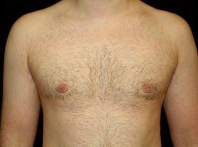 Gynecomastia Gallery - Patient 39245611 - Image 2