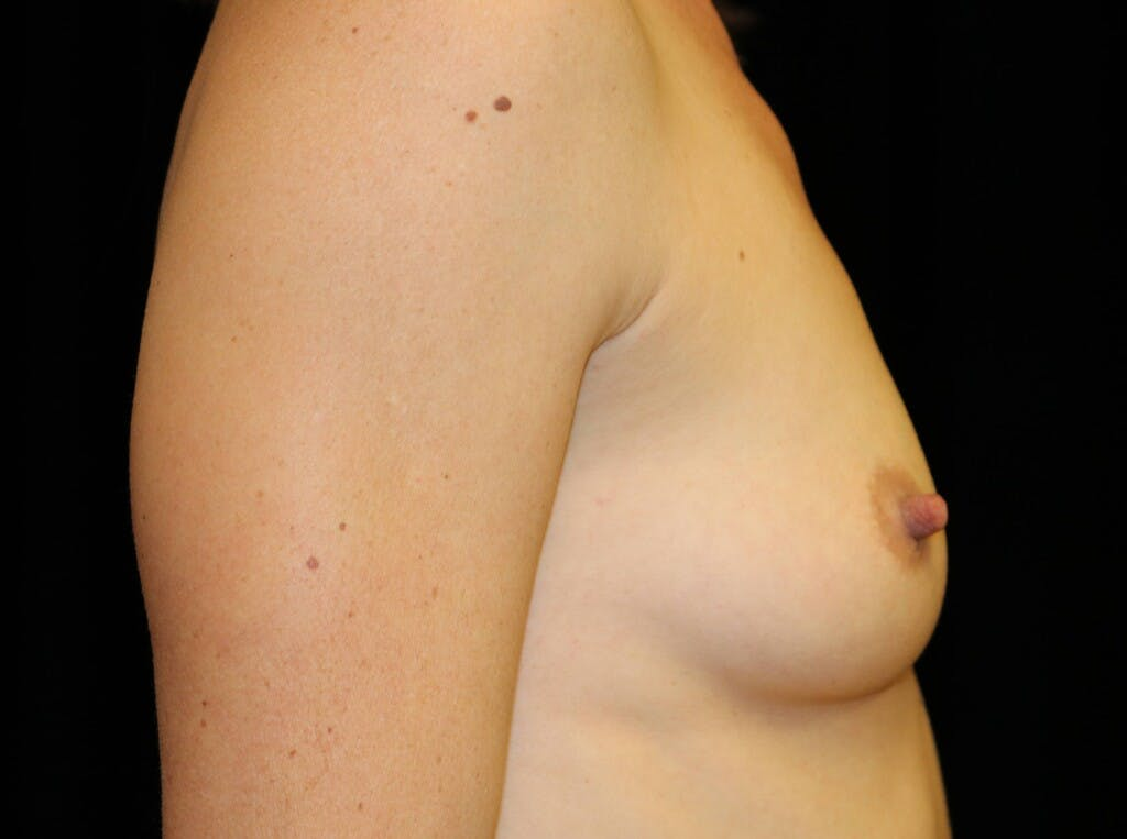Breast Augmentation Gallery - Patient 39245612 - Image 5