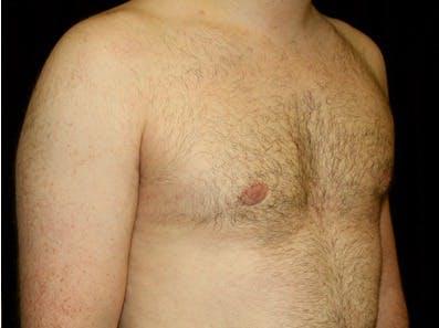Gynecomastia Gallery - Patient 39245611 - Image 4