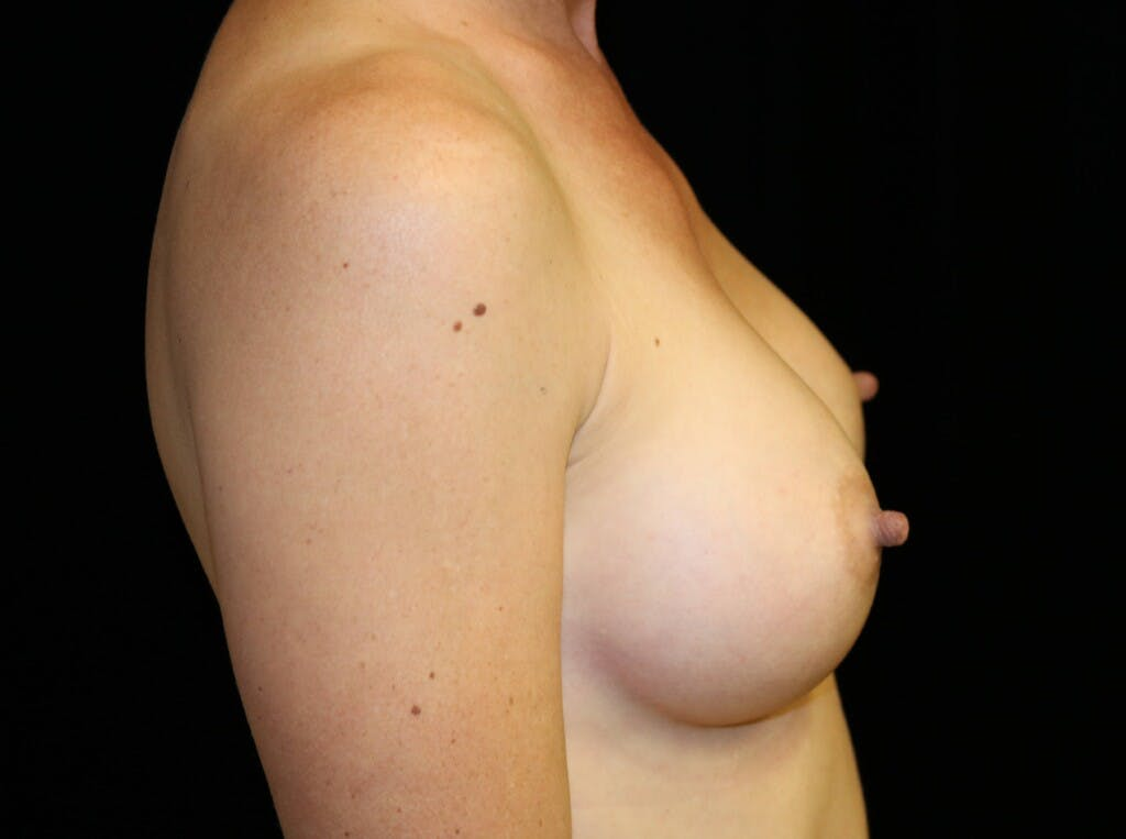 Breast Augmentation Gallery - Patient 39245612 - Image 6