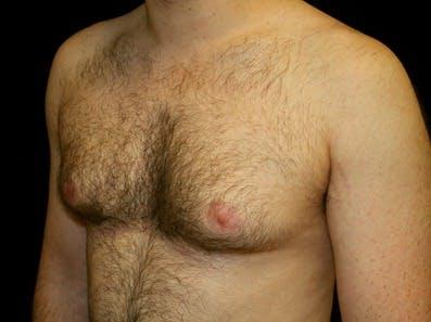 Gynecomastia Gallery - Patient 39245611 - Image 5