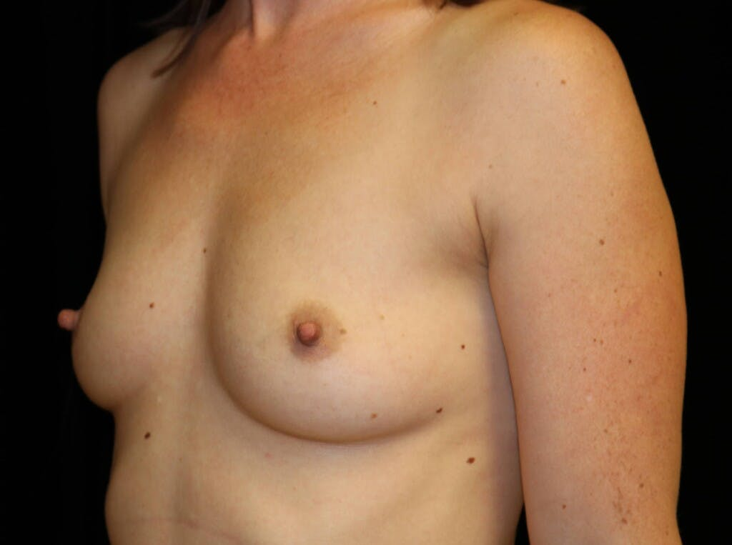 Breast Augmentation Gallery - Patient 39245612 - Image 7