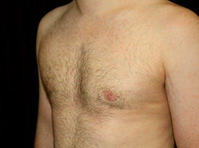 Gynecomastia Gallery - Patient 39245611 - Image 6