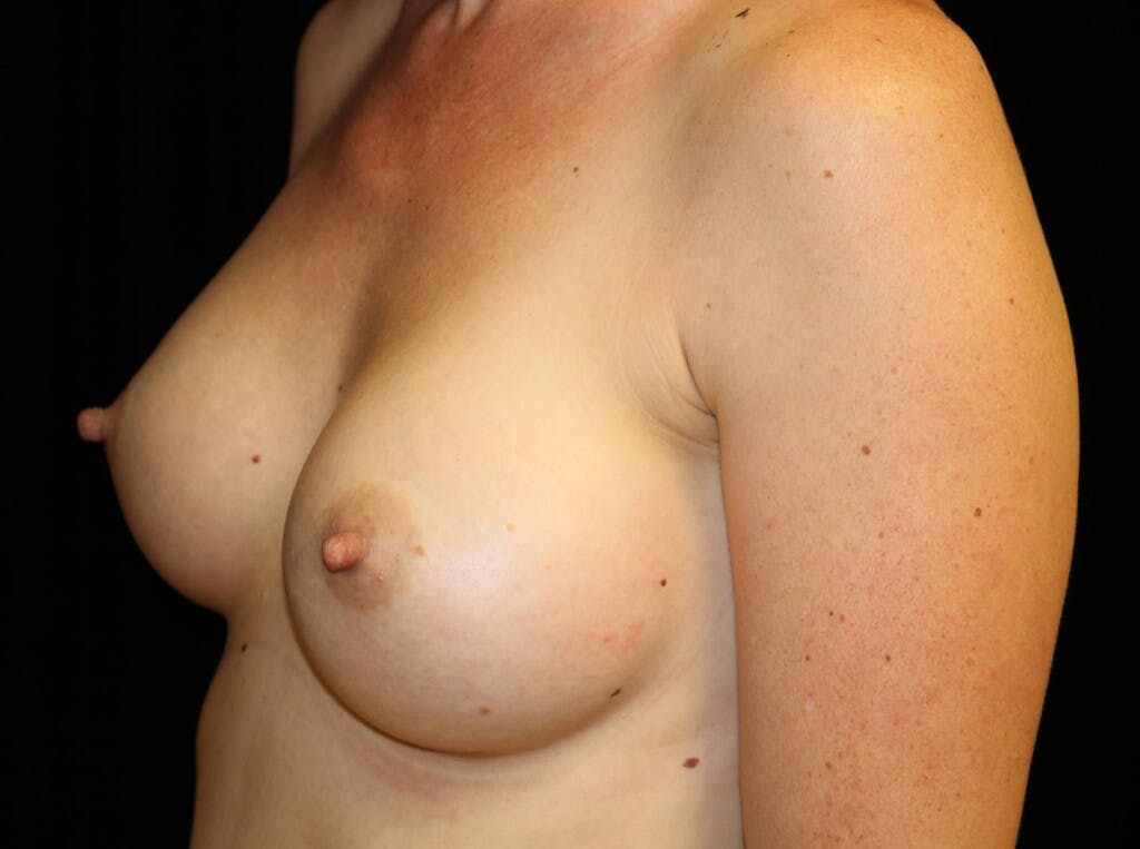Breast Augmentation Gallery - Patient 39245612 - Image 8
