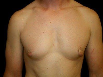 Gynecomastia Gallery - Patient 39245614 - Image 1