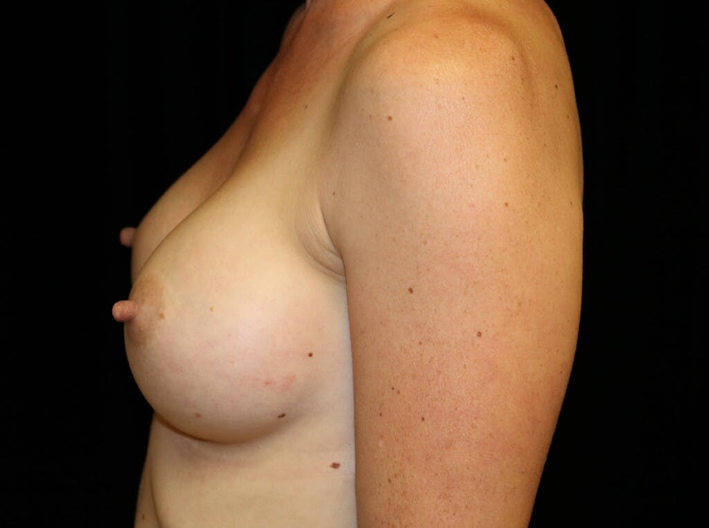 Breast Augmentation Gallery - Patient 39245612 - Image 10