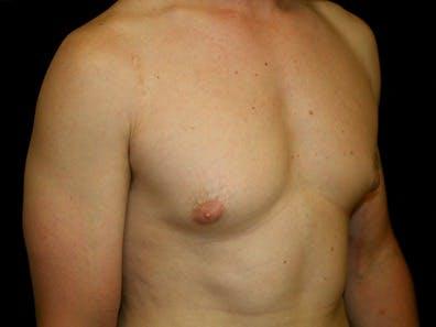 Gynecomastia Gallery - Patient 39245614 - Image 5