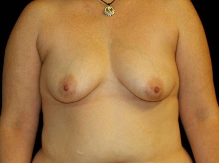 Breast Augmentation Gallery - Patient 39245615 - Image 1