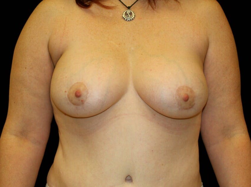 Breast Augmentation Gallery - Patient 39245615 - Image 2