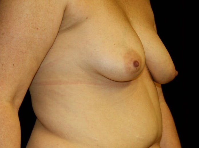 Breast Augmentation Gallery - Patient 39245615 - Image 3