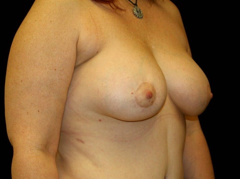Breast Augmentation Gallery - Patient 39245615 - Image 4